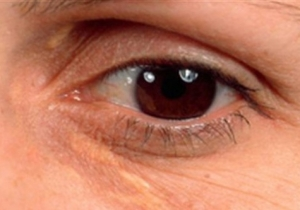 Small yellow bumps under the skin around your eye? Could be heart trouble!