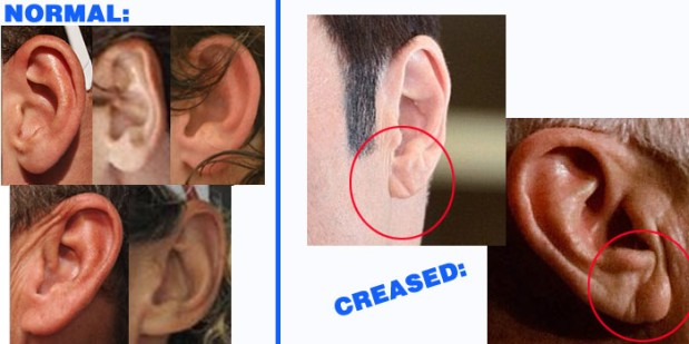 Earlobe Crease