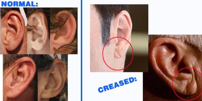 earss