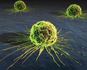 Top Cancer Killers